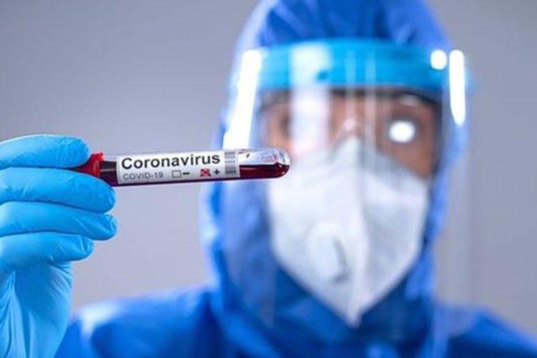 científico sosteniendo una muestra de sangre positiva de covid-19